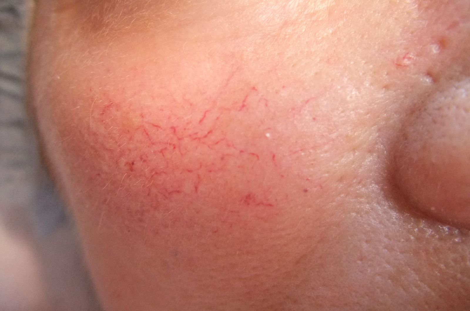 keloid images